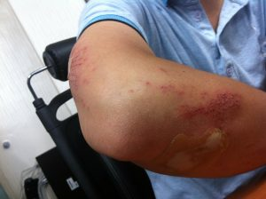 A injured arm of a man, work injury